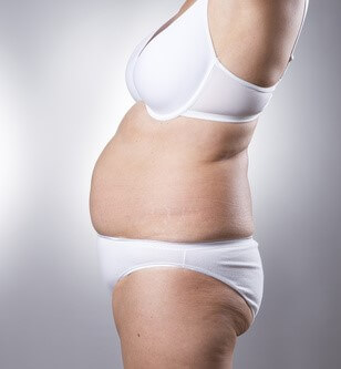 liposuction candidate photo