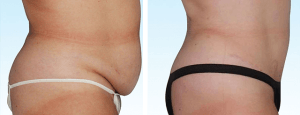 Before and After Photo of Tummy Tuck Procedure