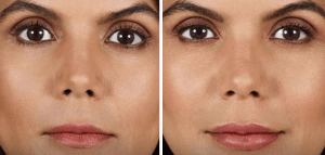 Juvederm-Volbella-Before-and-After-Photo
