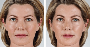 Juvederm-Vollure-XC-Before-and-After-Photo