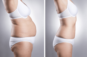 Liposuction-Before-and-After-Photo