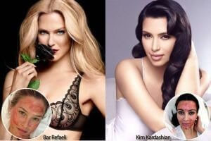 Vampire Facelift - Celebrity Photos