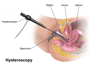 Hysteroscopy diagram