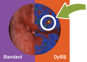 DySIS graphic