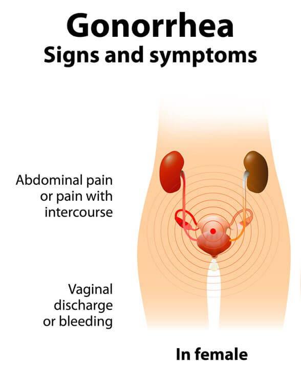 Symptoms Of Std In The Mouth Syphilis In Alaska Alaska