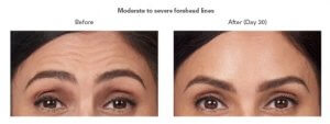 Botox Cosmetic, Before and After Photos