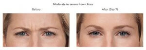 Botox Cosmetic patient results