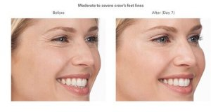 Botox Cosmetic for Crow's Feet