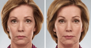 Juvederm-Voluma-XC-Before-and-After-Photo