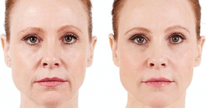 Juvederm-XC-Before-and-After-Photo
