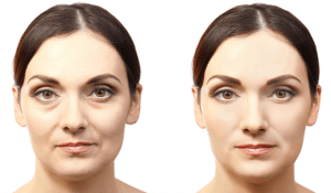 Before and After Photos of Vampire Facelift