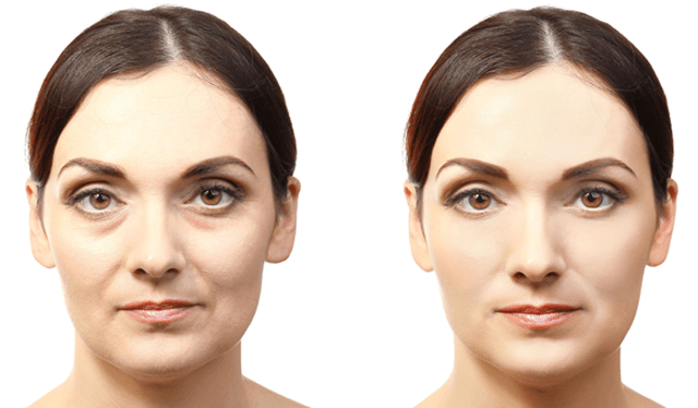 Vampire Facelift Before And After Photo Cherokee Women S Health