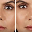 How Long Do Fillers Last, and Who's a Good Candidate?