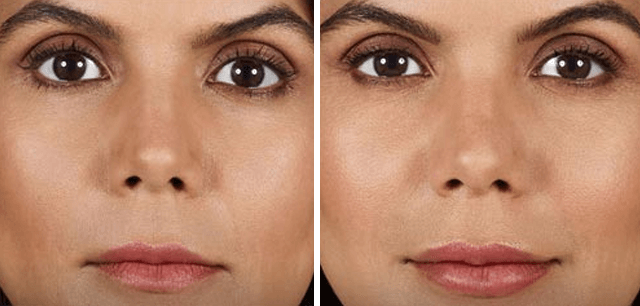 How Long Do Nose Fillers Last